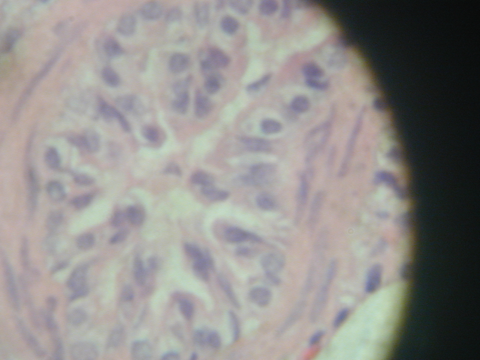biopsy from the bronchiole of a horse
