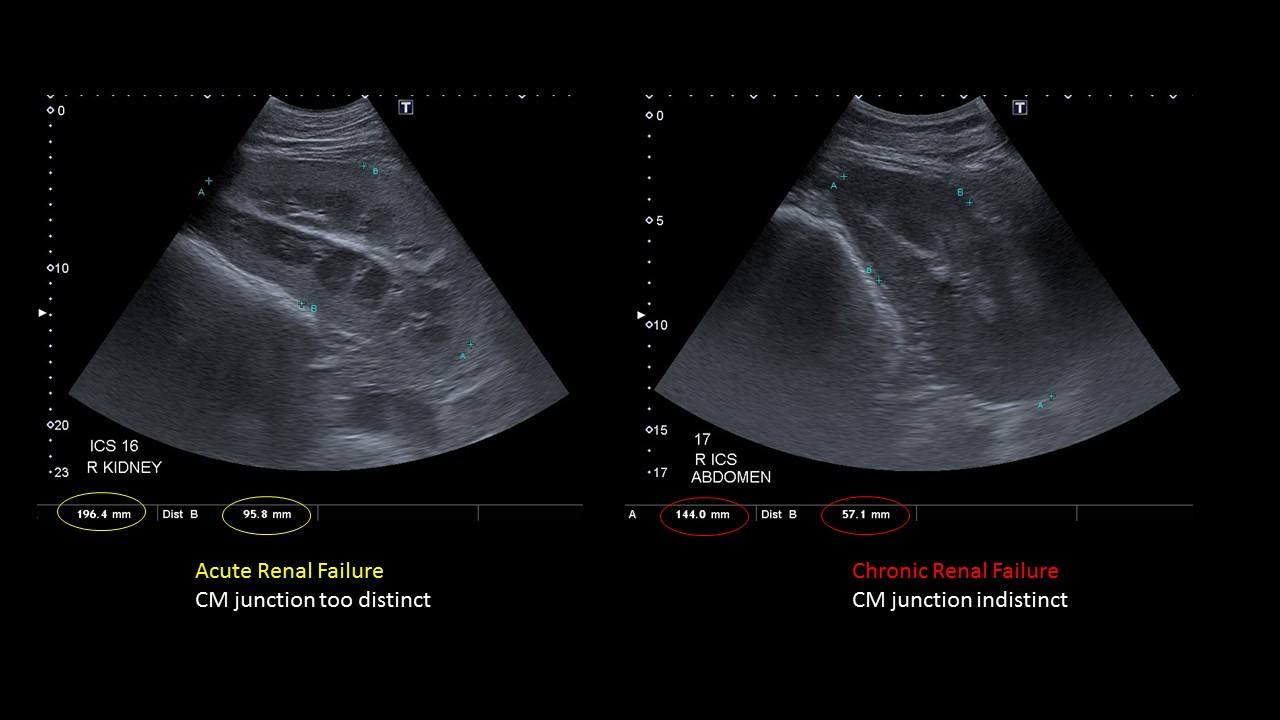 Ultrasound renal failure